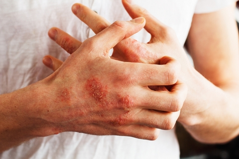 Lupus is one of the common causes of muscle pain.