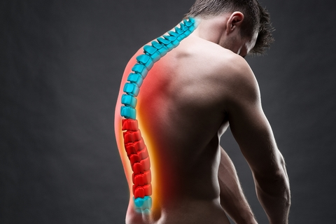When spinal discs shrink, this may cause a stiff back.