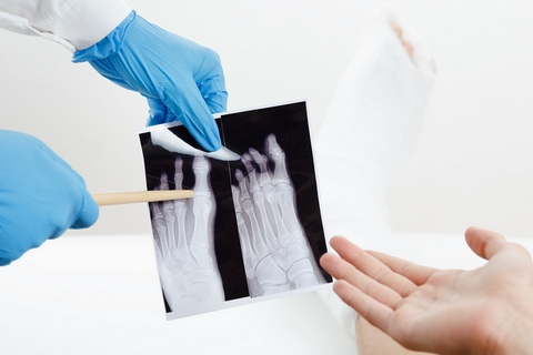 Deformity is a common sign and symptom of broken bones.