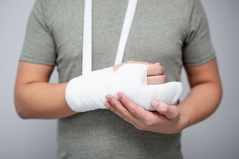 Swelling is a common sign and symptom of broken bones.