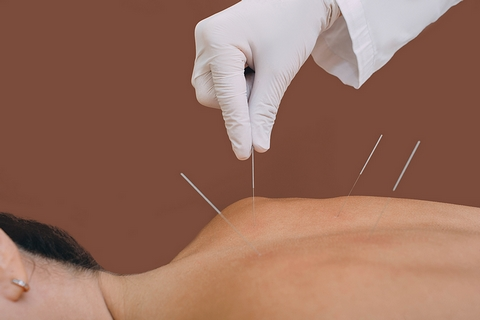 Acupuncture is a good natural remedy for arthritis pain.